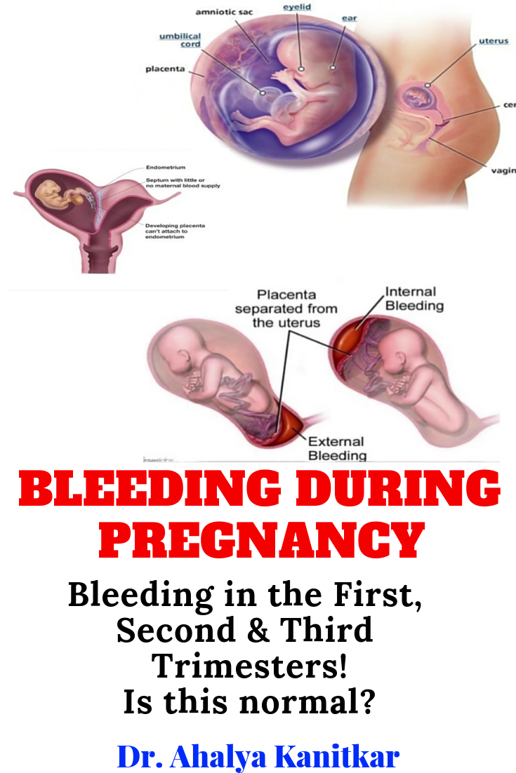Pin On Pregnancy Care