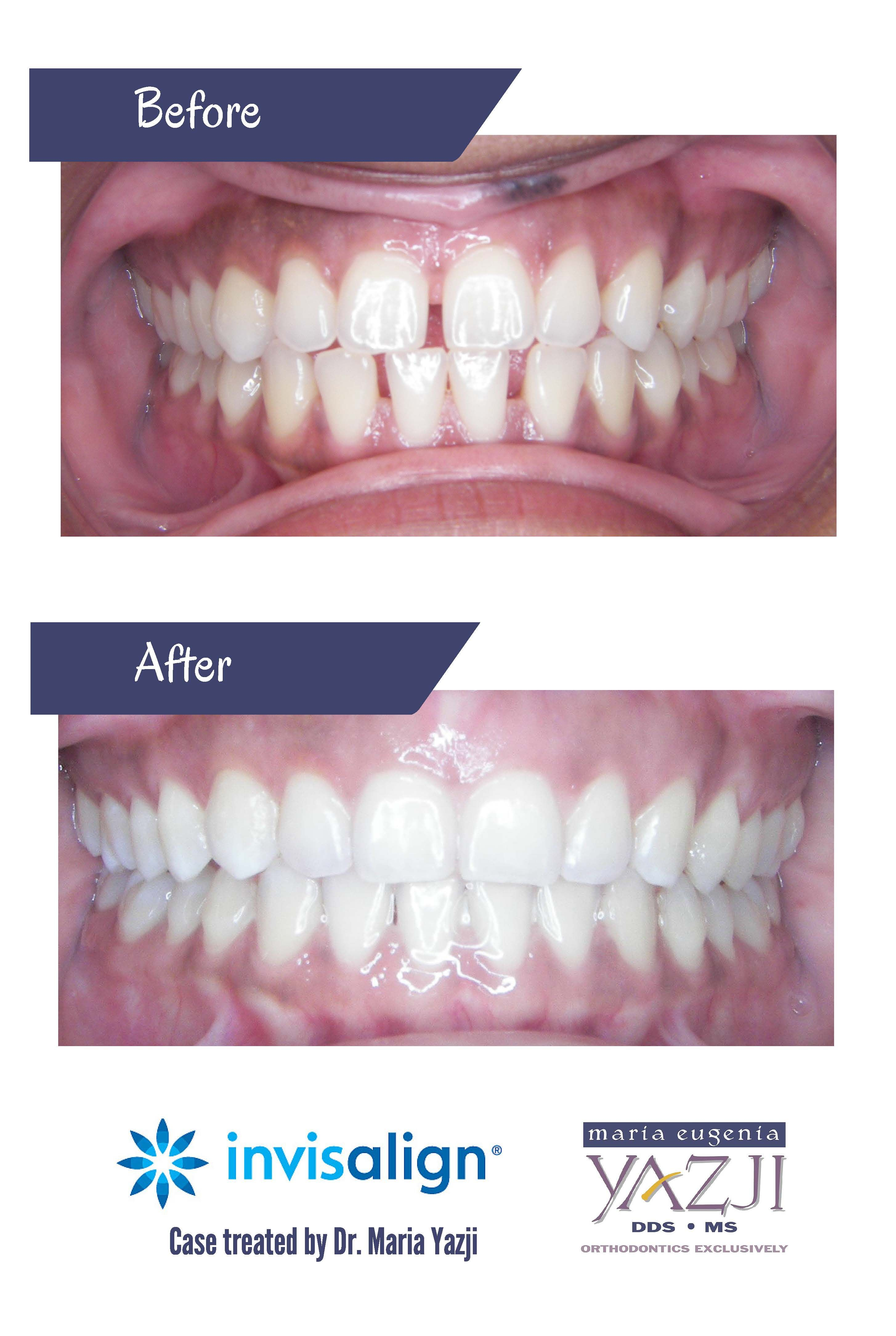 Gaps closed with #Invisalign. #straightteeth # ...