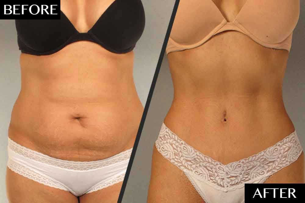 Laser lipo before and after stomach 7 | Liposuction before