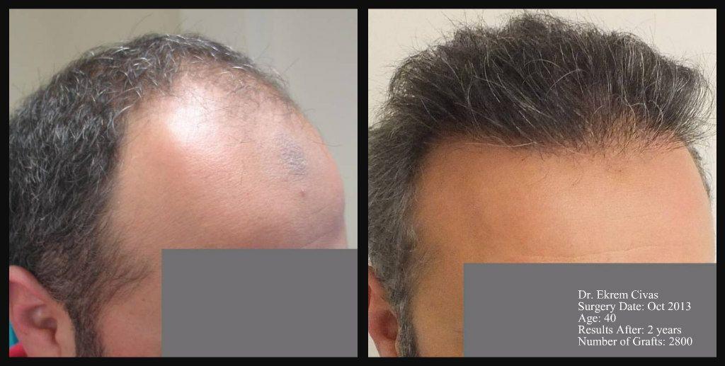 hair transplant turkey photos pictures photographs