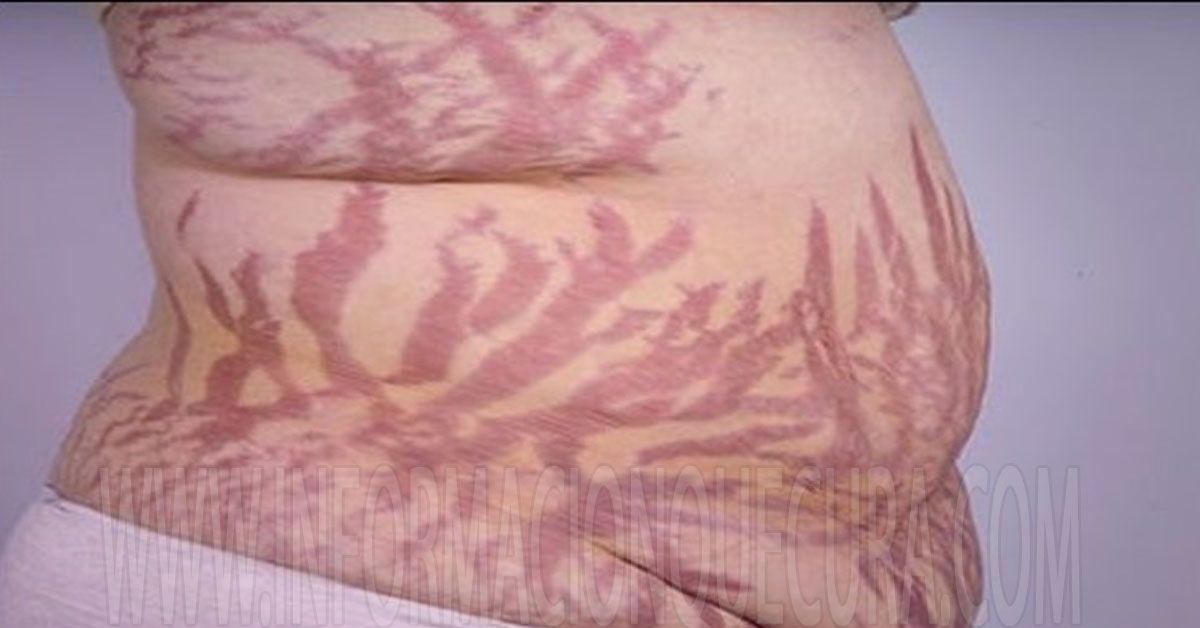 Este Remedio Te Hara El Dia Al Ver Los Resultados Cero Estrias Para Siempre Stretch Mark Treatment Stretch Marks Cushings Syndrome