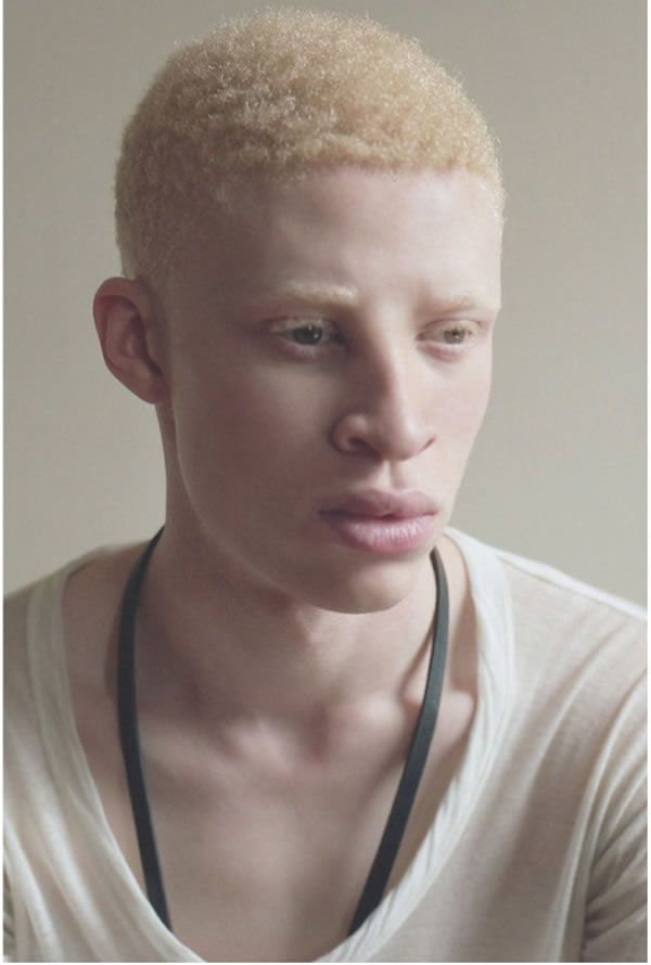 Another 9 Of The Most Unusual Models  Obeauty  Albino -3978