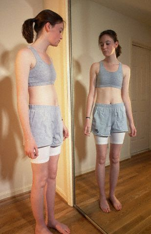 Pro anorexia weight loss extreme youth obesity is a risky and pro anorexia weight loss extreme youth obesity is a risky and widespread problem ccuart Choice Image