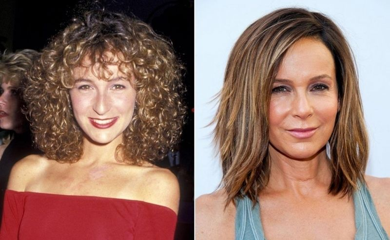 PHOTOS: Facelift, Fat grafting and Lower Blepharoplasty ...  Celebrity Lower Blepharoplasty
