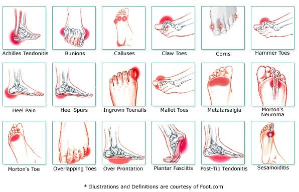 Foot pain chart common ailments and causes health pinterest