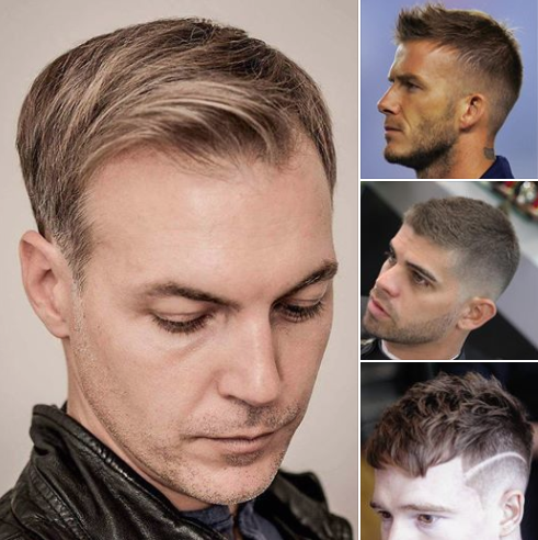 10 Best Hairstyles For Balding Men Balding Mens Hairstyles Haircuts For Balding Men Mens Haircuts Fine Hair