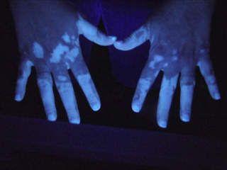 Vitiligo Wood S Lamp Appears More White Vitiligo Skin Vitiligo Treatment Vitiligo Cure
