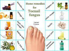 Wie kann man Zehennagelpilz loswerden? Beste Hausmittel für Zehennagelpilz. Was verursacht Zehennagelpilz? Vicks dampfer, Essig, Listerine für die Infektion der Zehennägel – My Blog