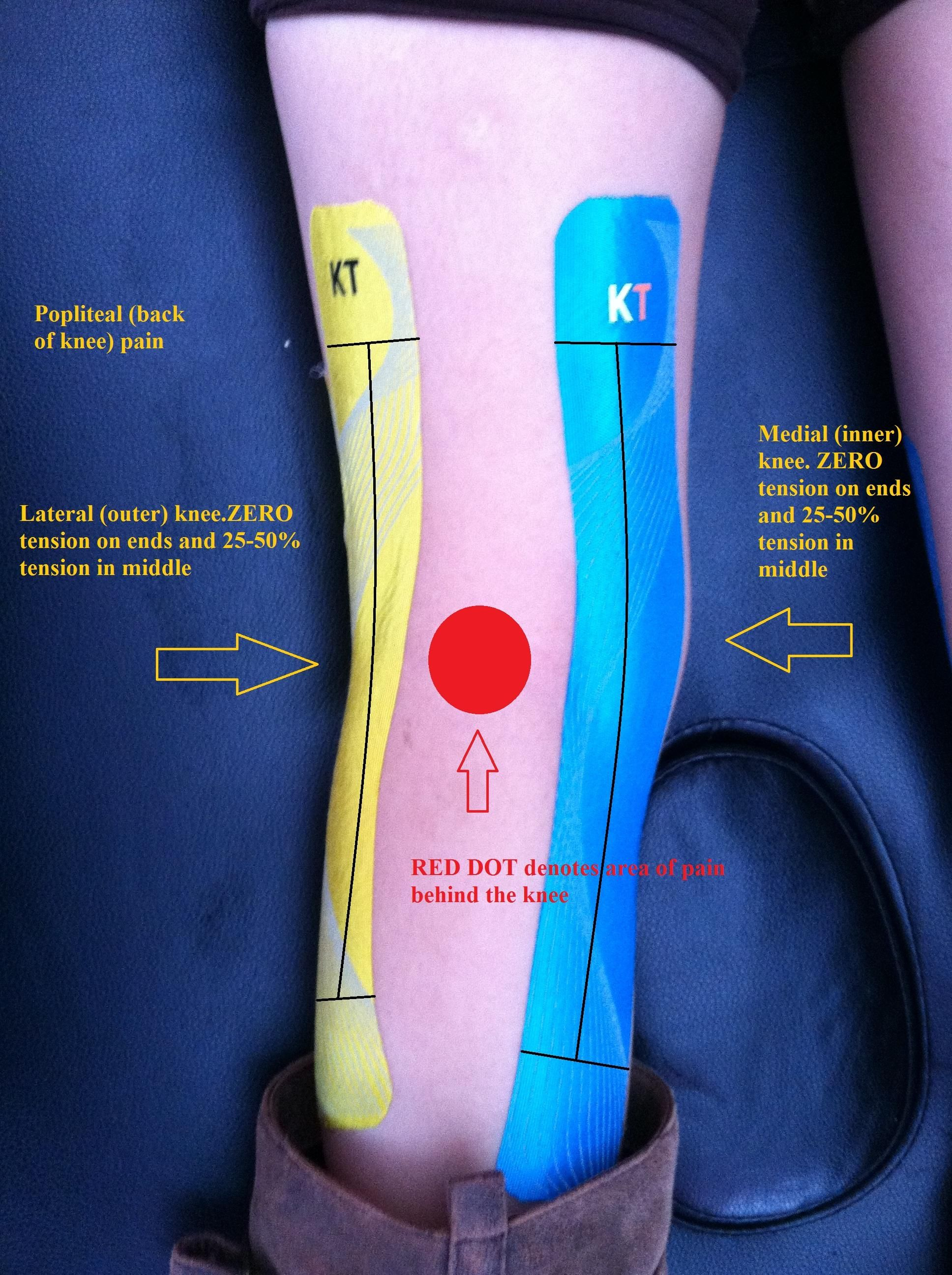 Popliteal behind the knee pain version 2 knee pain popliteal behind the knee pain version 2 kt pro pooptronica Image collections