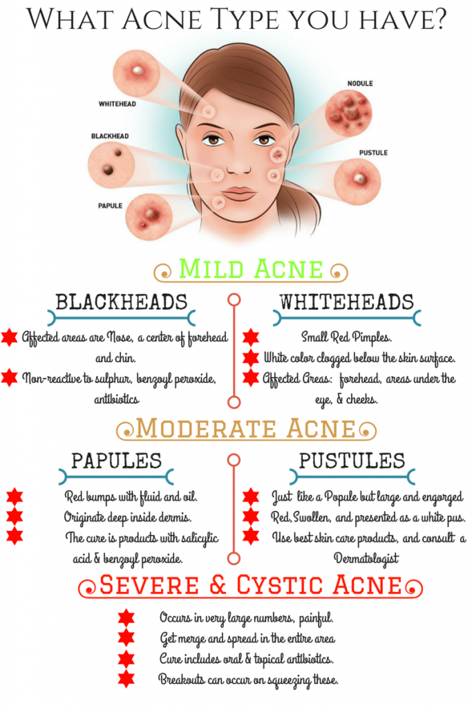 What Is Acne Vulgaris And What Are Acne Vulgaris Types With Images Acne Vulgaris Types Of Acne Acne Vulgaris Treatment