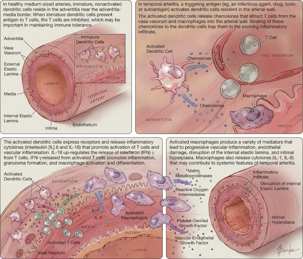 Temporal arteritis is a steroid-responsive, large-vessel vasculitis ...