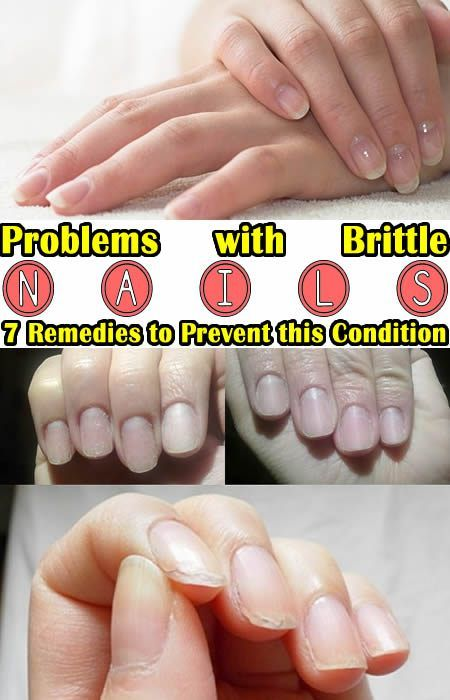 Problems with Brittle Nails? 7 Remedies to Prevent this Condition ...