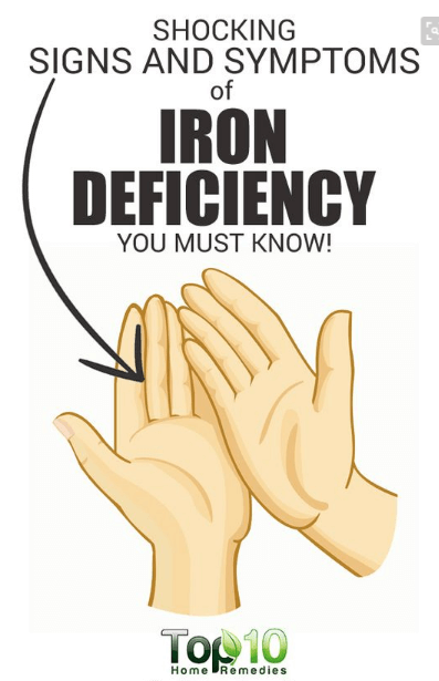 10 Signs And Symptoms Of Iron Deficiency Health Nutrition