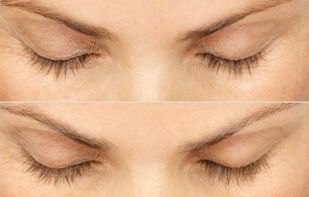 6 Things You Need to Know Before Trying Latisse ...