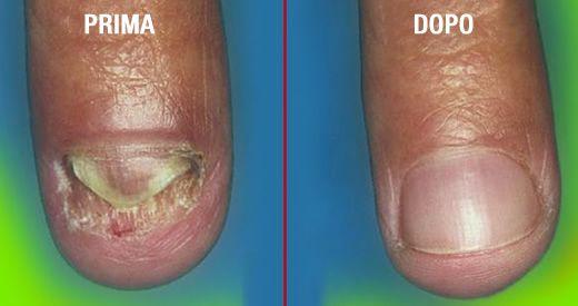 Se è possibile aumentare unghie se un fungo
