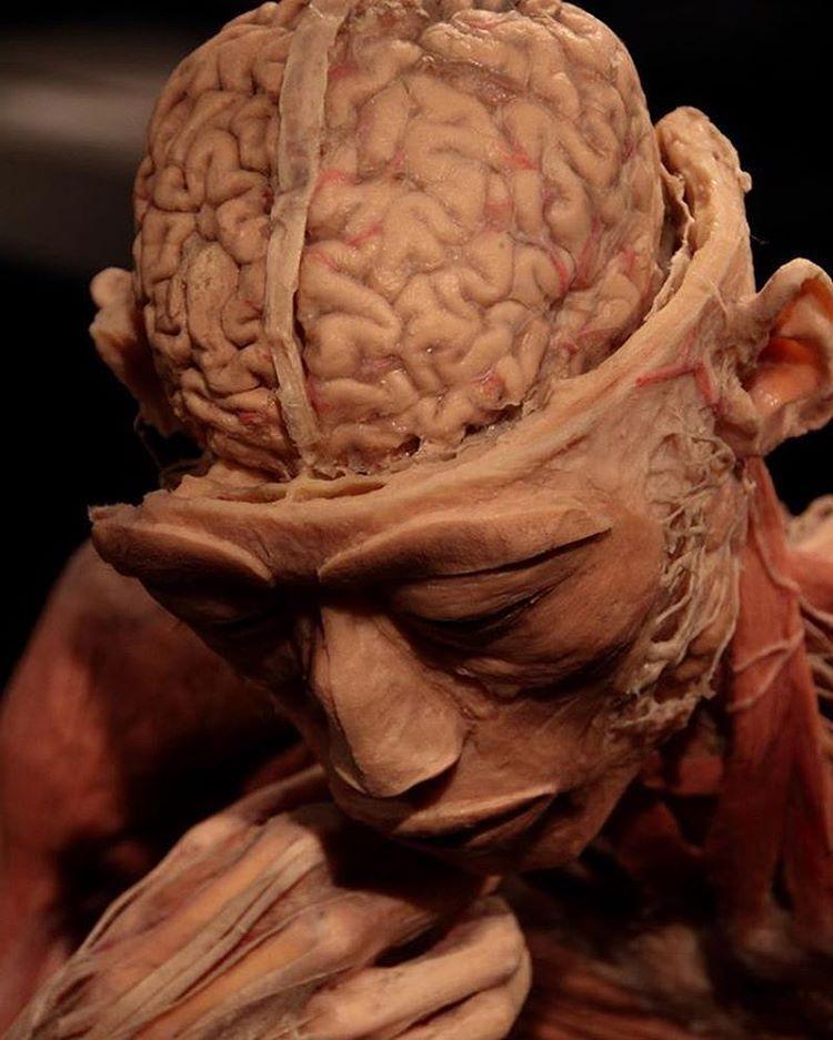 O cérebro compõe-se de telencéfalo e do diencéfalo. O telencéfalo é ...