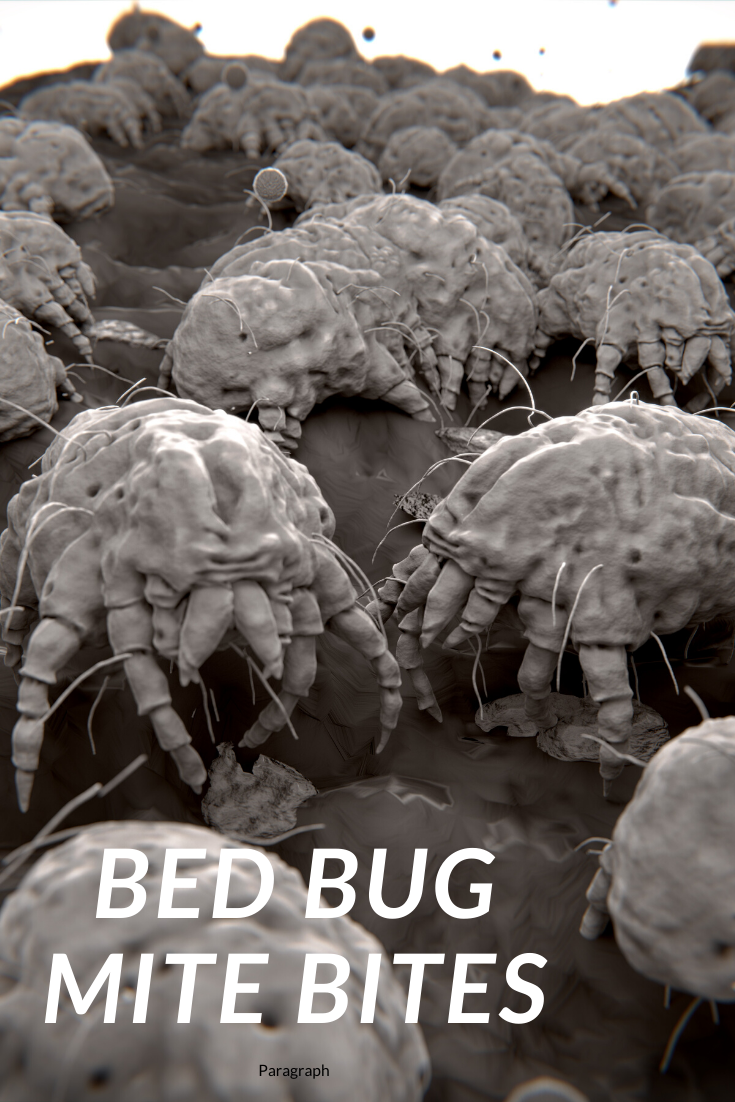 Do Bed Bug Mite Bites? Dust mites bites, Bed bug bites
