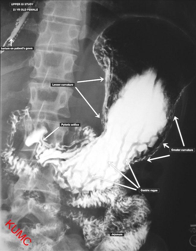 Ugi from ku radiographic anatomy radiology anatomy pinterest ccuart Choice Image