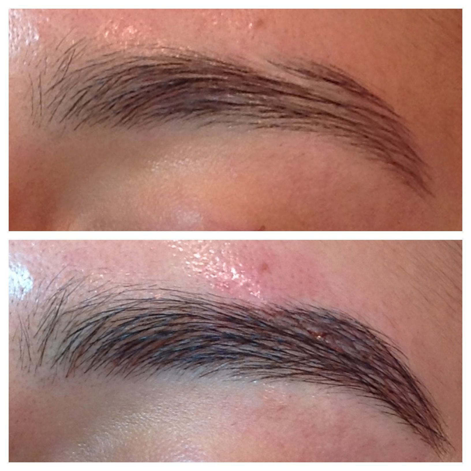 June 2015 Brow Tattoo Scar Revision And Camouflage
