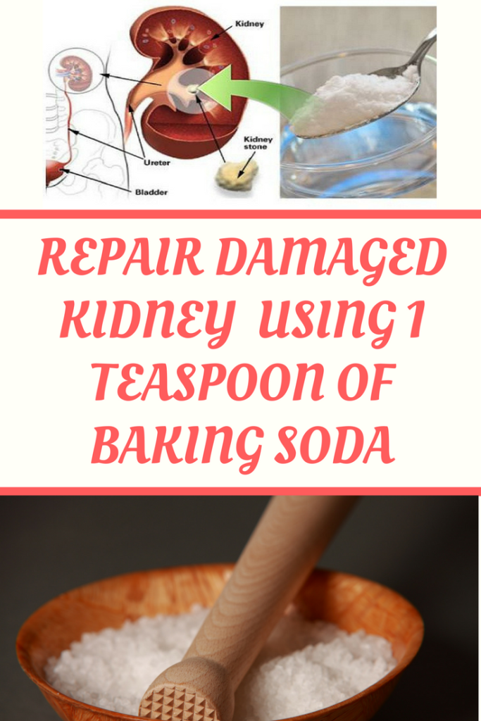 Try This  Repair your damaged kidney using 1 teaspoon of baking soda