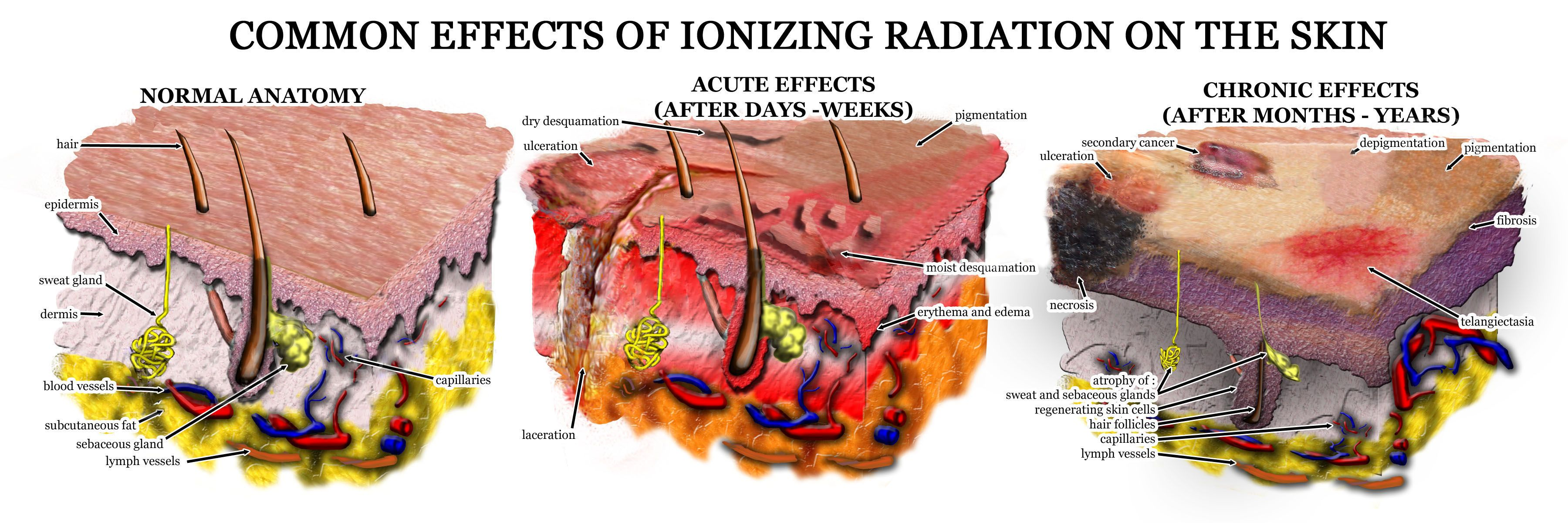 Pictures of and radiation chest wall inflammation and radiation - Common Effects Of Ionizing Radiation On The Skin