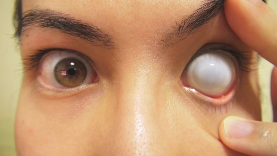 How to: Insert And Remove Cataract Sclera Contact Lens (Fxeyes ... #lenses #sclera #lenses in 2020 | Contact lenses. Lenses. Lens