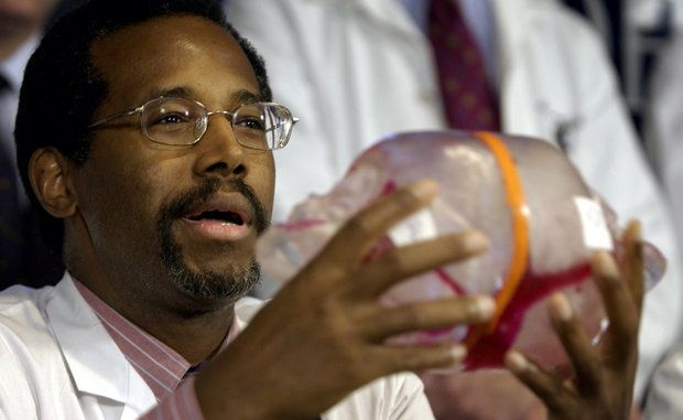 Dr. Benjamin Carson uses a model of the conjoined twins to ...