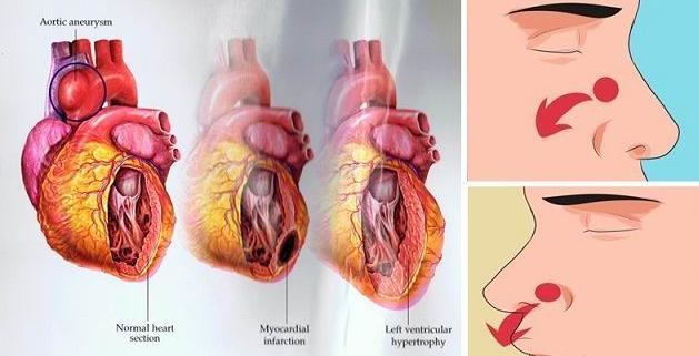 remedios caseros para regular el acido urico acido urico signos y sintomas metodo natural para la gota