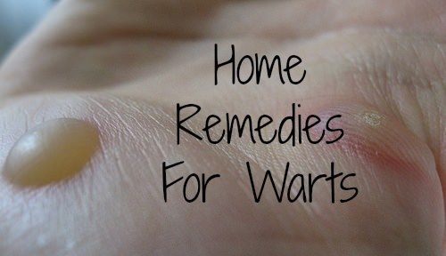 how to get rid of small warts on hands