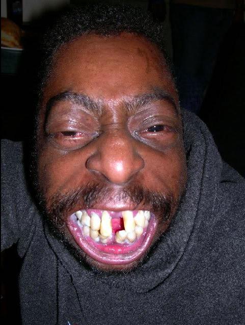 Funny Picture Black Guy : funny, picture, black, Funny, Black, Teeth, TeethWalls