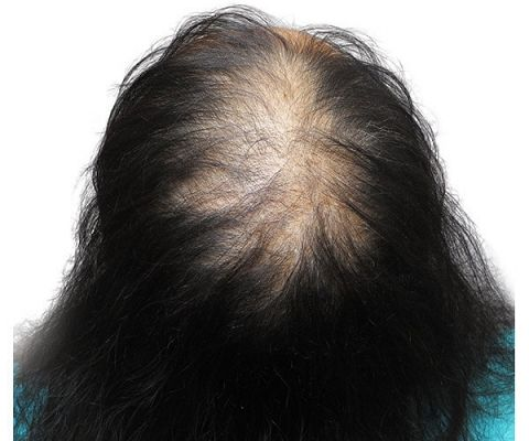 Top of woman\'s head with thinning hair before SMP | Cute Outfits ...
