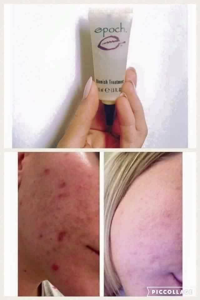 Facial blemish treatments
