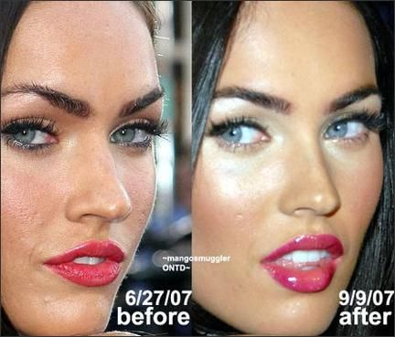 Megan Fox Before and After Rhinoplasty | Lips | Megan fox plastic