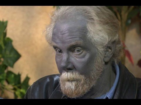 Image result for blue people of kentucky