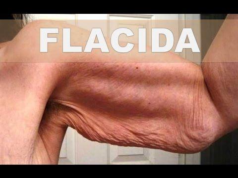 Tratamientos esteticos para adelgazar brazos