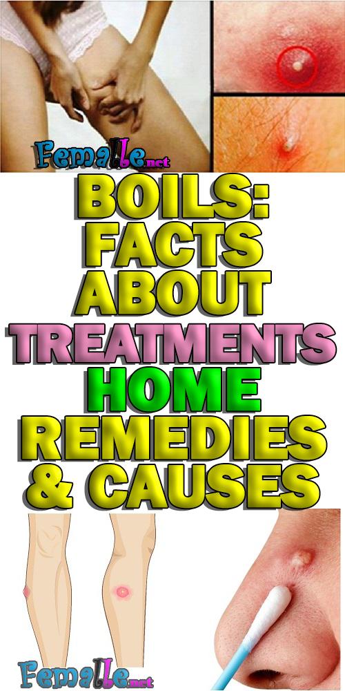 BOILS: Facts About Treatments, Home REMEDIES & CAU