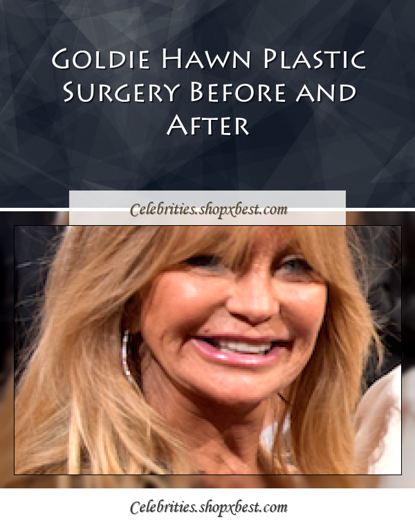 Goldie Hawn Born Nov 21 1945 Is An American Actress: Goldie Hawn Plastic Surgery Before And After