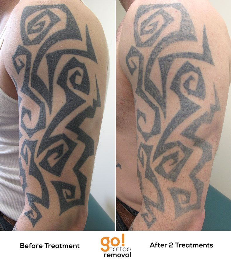 2 laser tattoo removal treatments down on this large for Tattoo turned black after laser