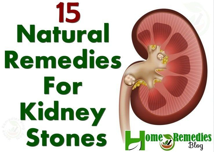 3mm Kidney Stone Actual Size Google Search To Your Health