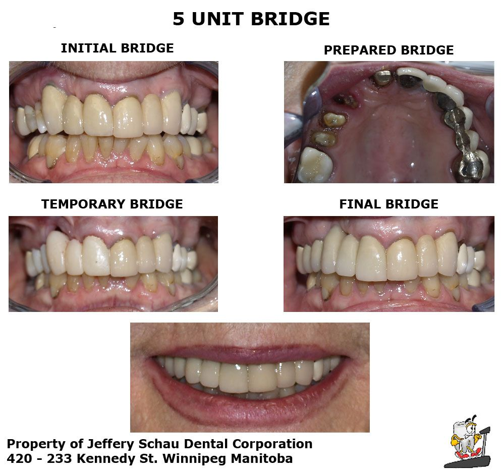 A Bridge Also Known As A Fixed Partial Denture Is A Dental Restoration Used To Replace A Missing Tooth Or Teeth Dental Restoration Dental Partial Dentures