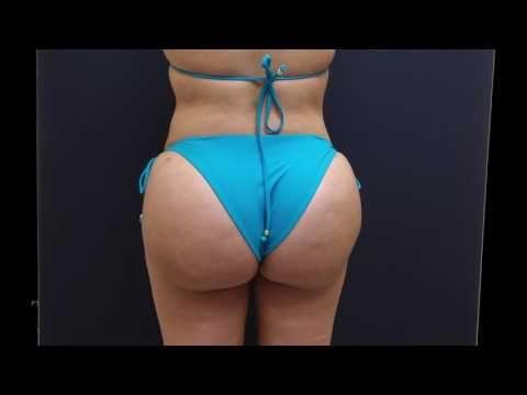 Best Brazilian Butt Lift Results in 30 Seconds! - YouTube