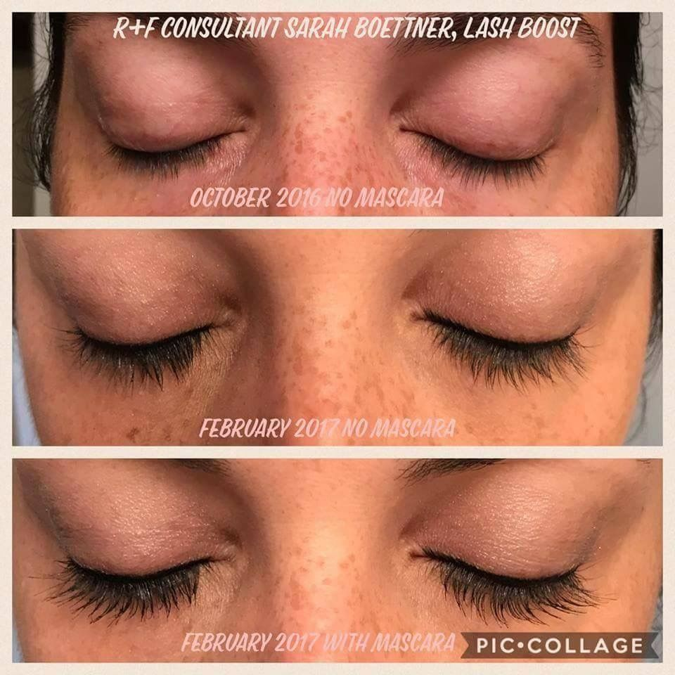 Over Time Our Eyelashes Fall Out And Thin And Become Brittle