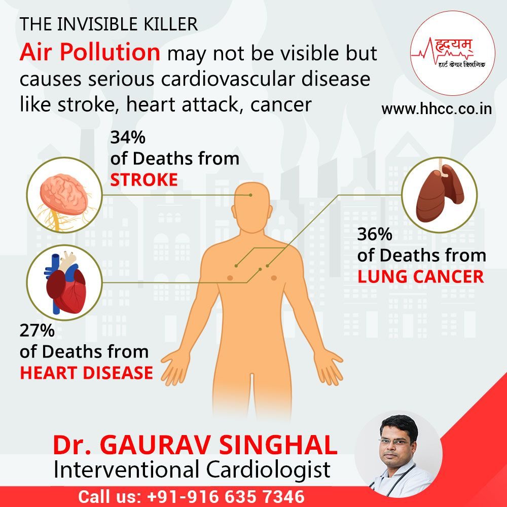 Cardiologist Near me contact heart specialist in Jaipur