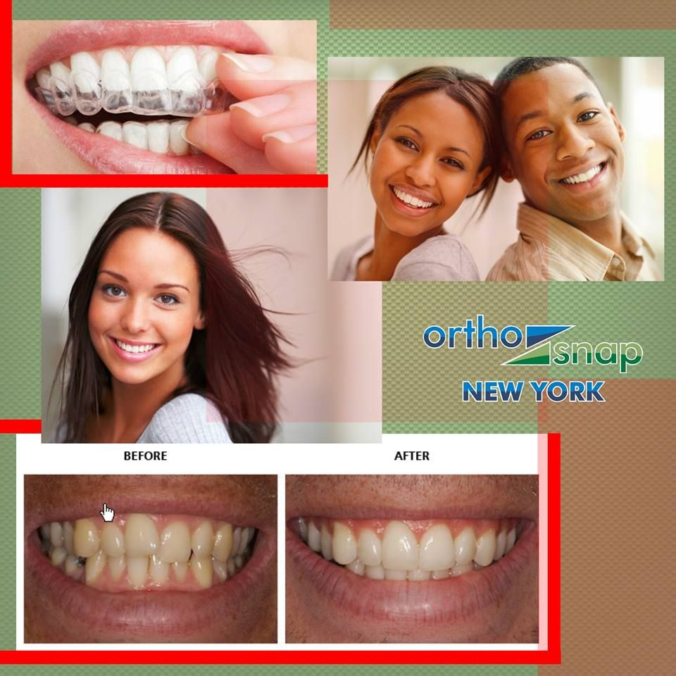 OrthoSnap is an easy to use and affordable alternative to
