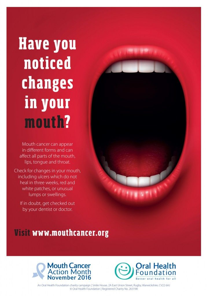 Downloads Mouth Cancer Action Month ⭕️ral Cancer Get