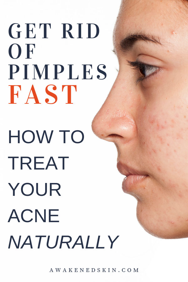 How To Get Rid Of Pimples Instantly How To Zap Pimples Fast 8 Proven Natural Acne Treatments Treat Acne Naturally How To Get Rid Of Pimples Pimples