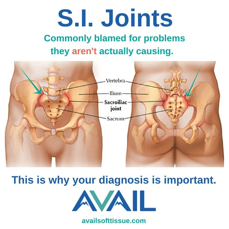Your Si Joints Arent Subluxated If You Have Pain In These Joints