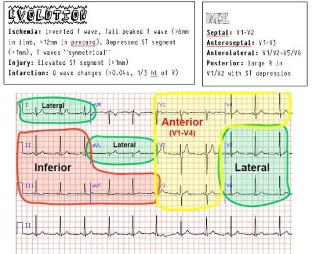 EKG ECG Cheat Sheet EKG Nursing Cardiac Nursing Icu