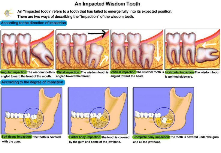 Knowing wisdom teeth soup dentistlife