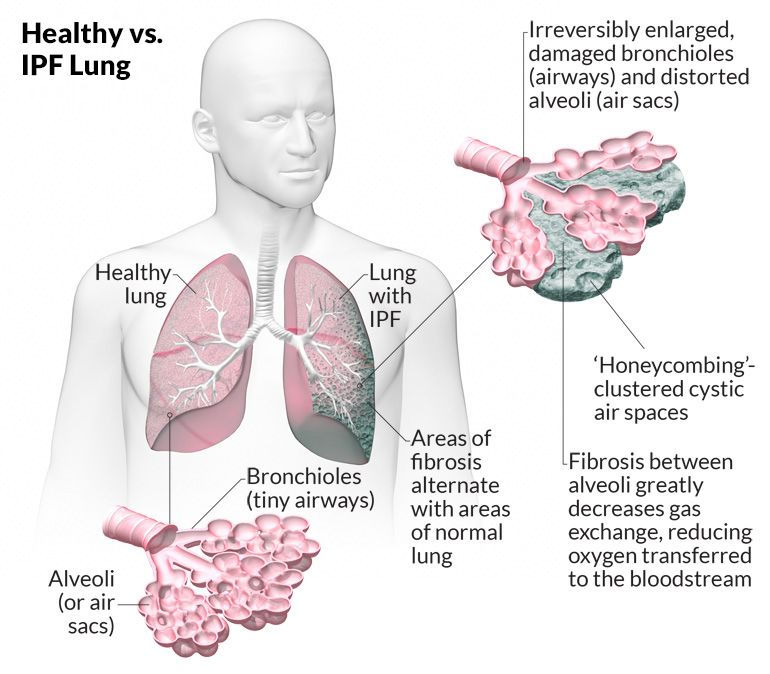 Healthy Lung vs. IPF Lung | Ipf | Pinterest | Lungs, Pulmonary ...